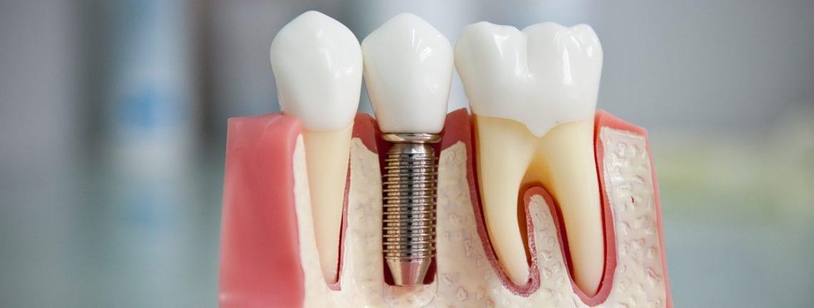Имплантация зубов в Омске стоимость