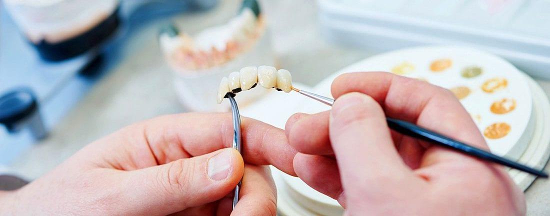 Протезирование зубов в Омске цены