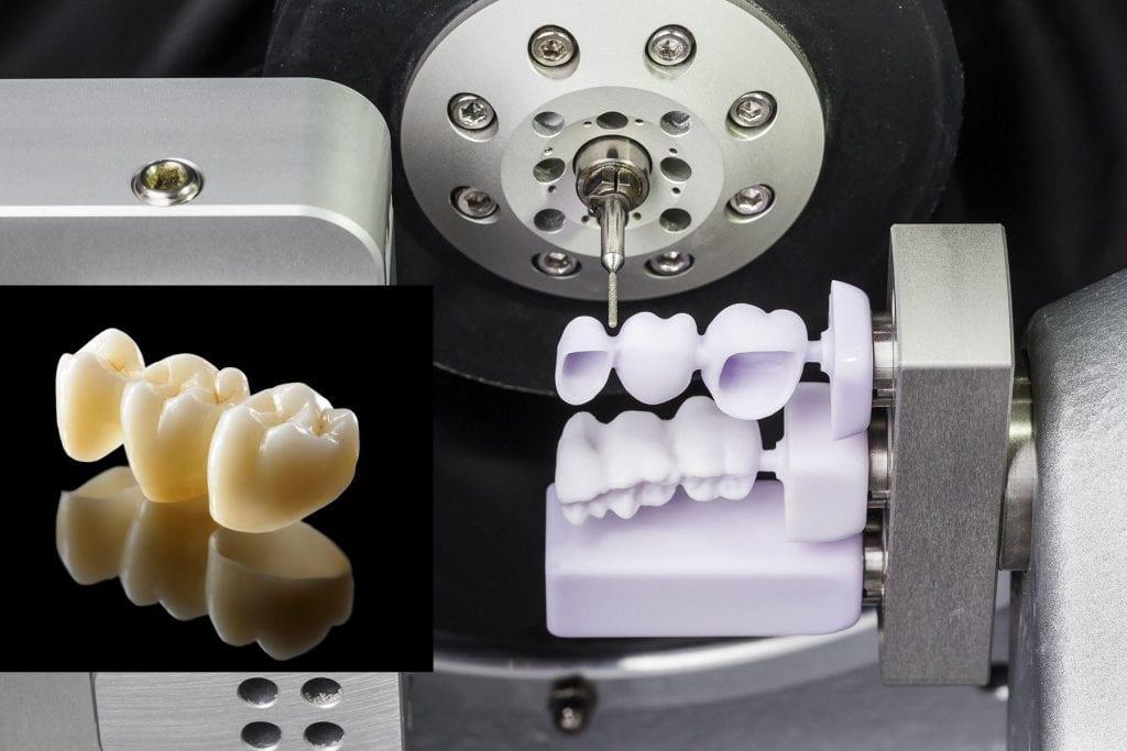 CAD/CAM. Роботы на службе у стоматологов