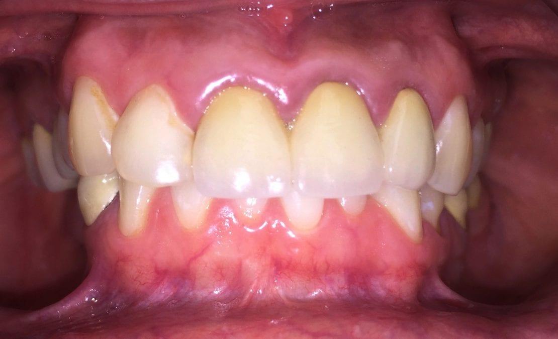 Коронки из безметалловой керамики и керамические виниры E-Max, имплантация зубов