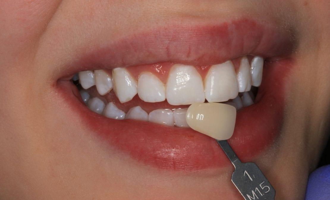 Отбеливание зубов системой ZOOM-4