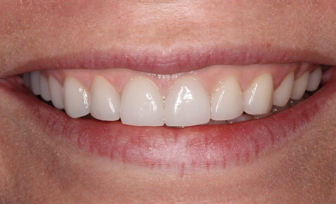 Виниры и коронки из прессованной керамики E-max (Германия). Имплантация зубов.