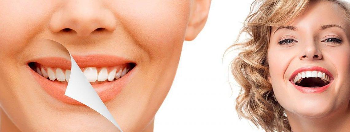 Отбеливание зубов ZOOM-4 и Beyond