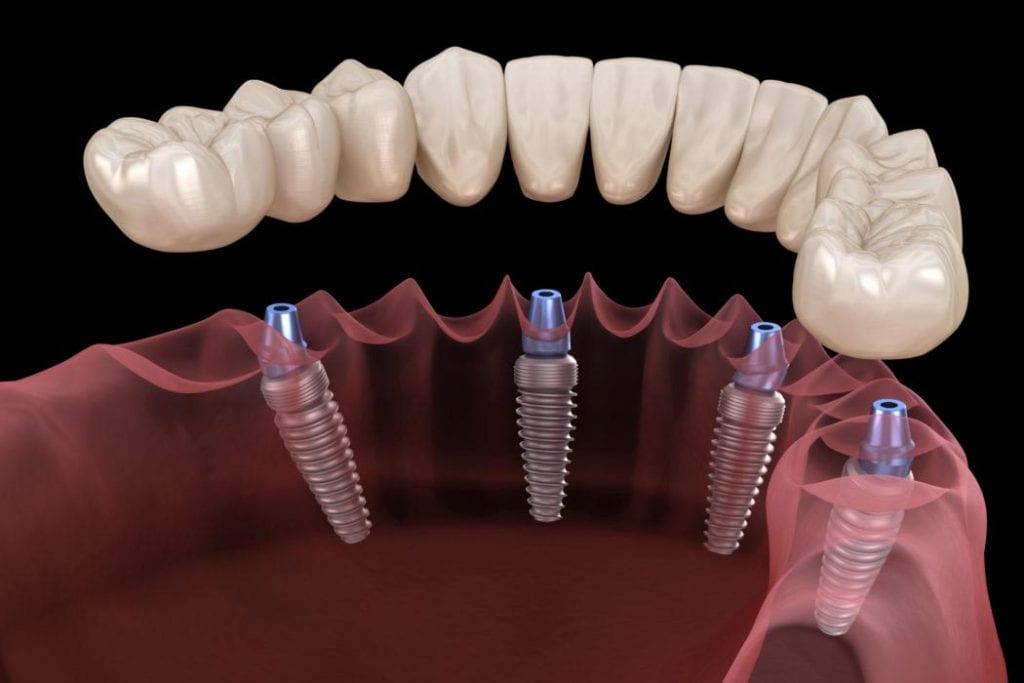 Имплантация и протезирование