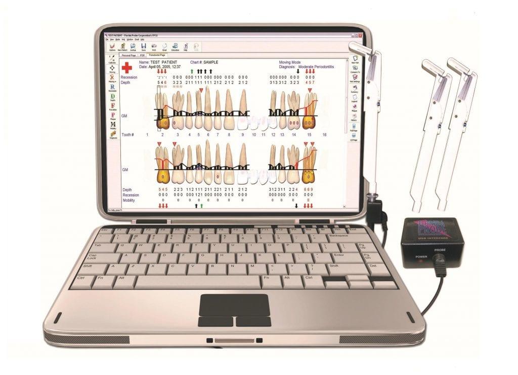 Компьютерная диагностика пародонтита