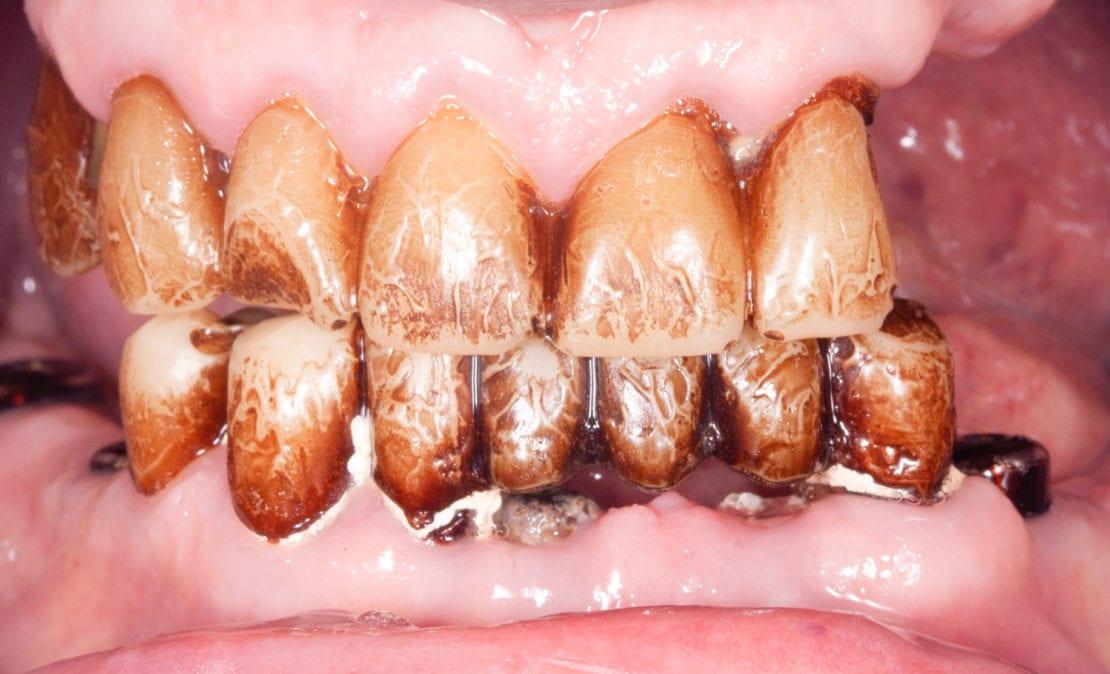 Профессиональная гигиена полости рта перед протезированием зубов