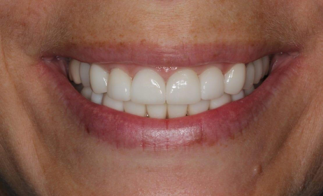 Тотальное протезирование при патологической стираемости зубов