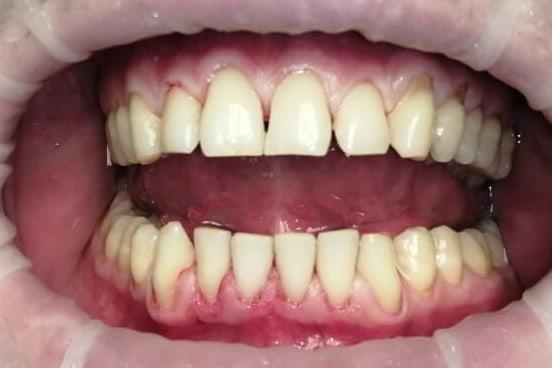 Проф. гигиена полости рта